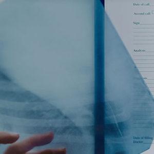Poradnia pulmonologiczna